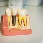 """Фото 9 круглосуточной стоматологической клиники в Москве """"Кларимед24"""""""
