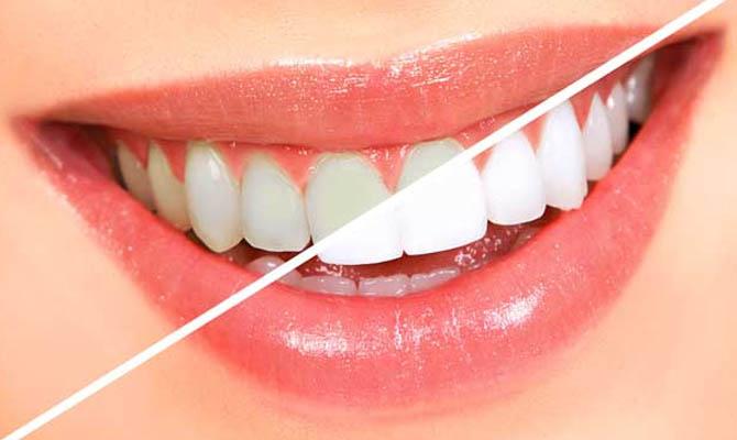 глубокое фторирование эмали зубов