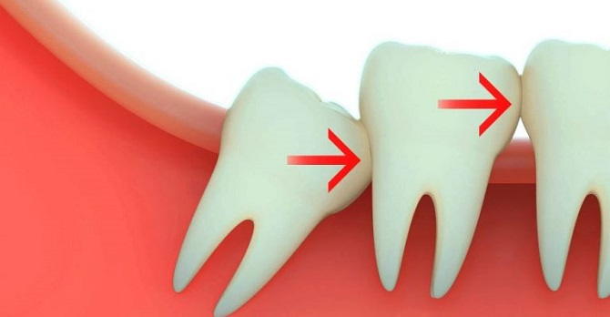 удаление зубов 24 часа в сутки