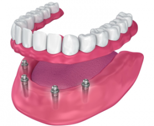 Модель челюсти с имплантацией Все на четырех