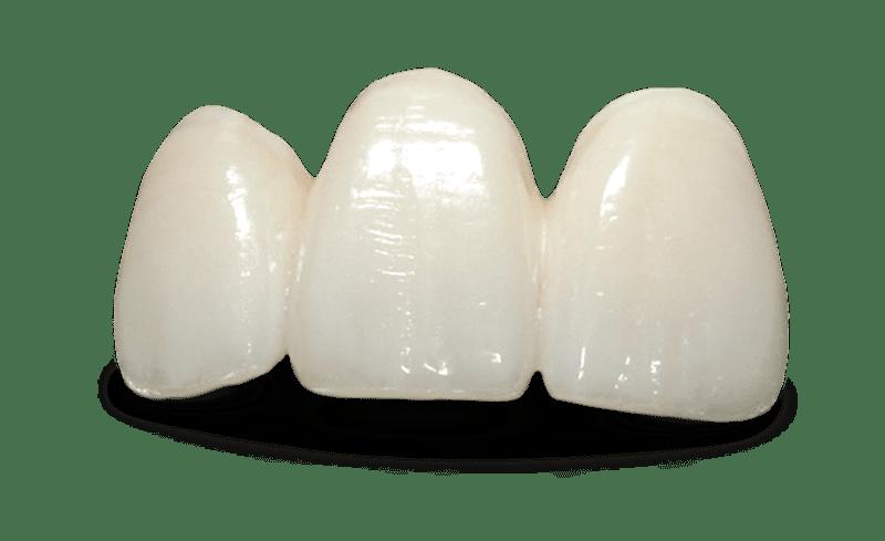 Виниры для коррекции передних зубов