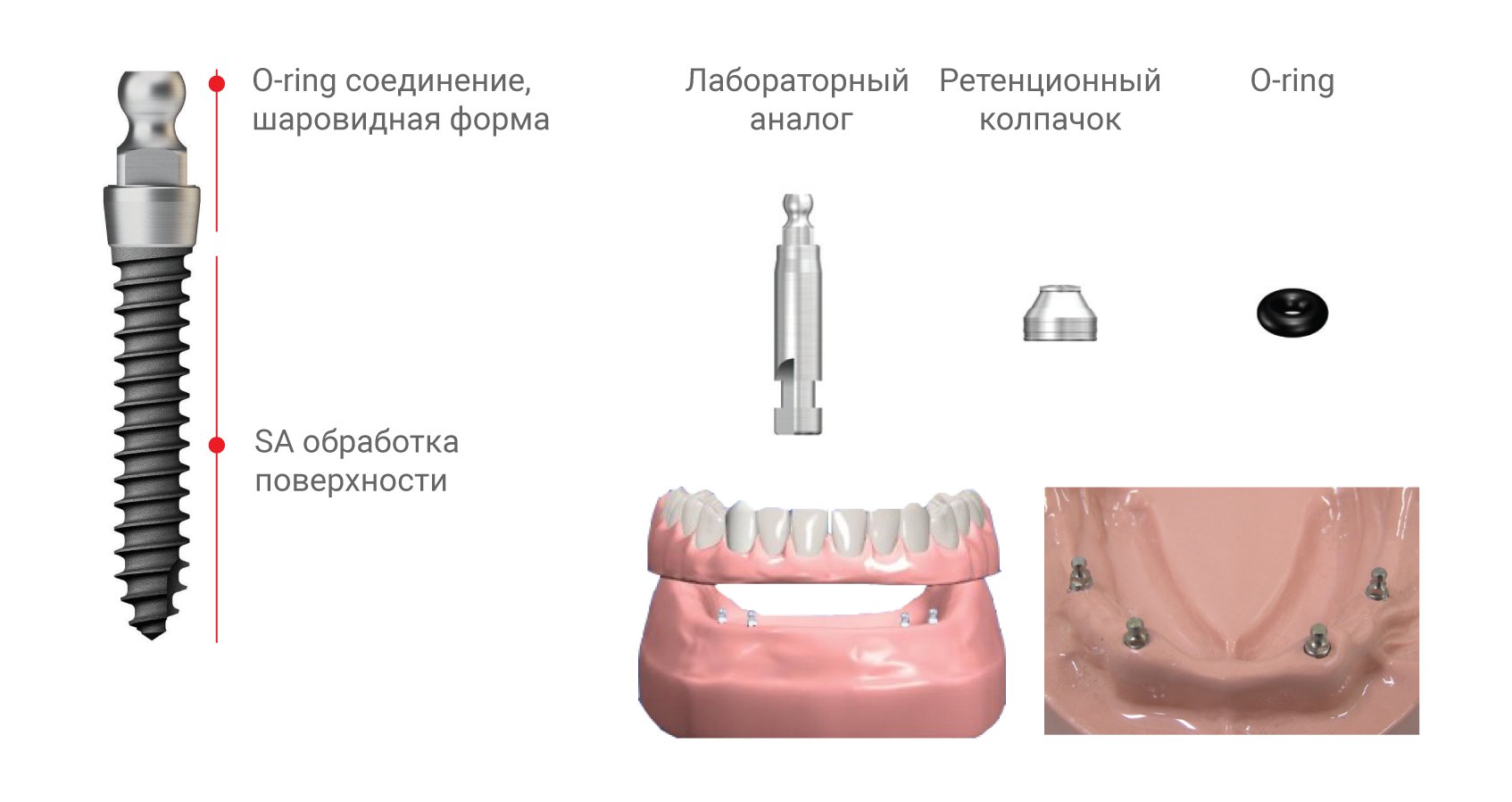 MS имплантат