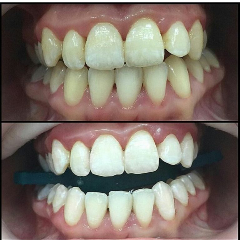 Как сделать дешевле зубы