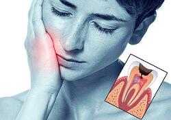 лечение пульпита постоянных зубов