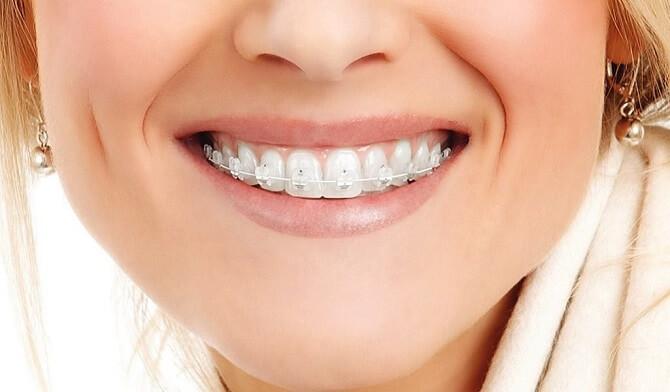 ортодонтический имплантат в стоматологии